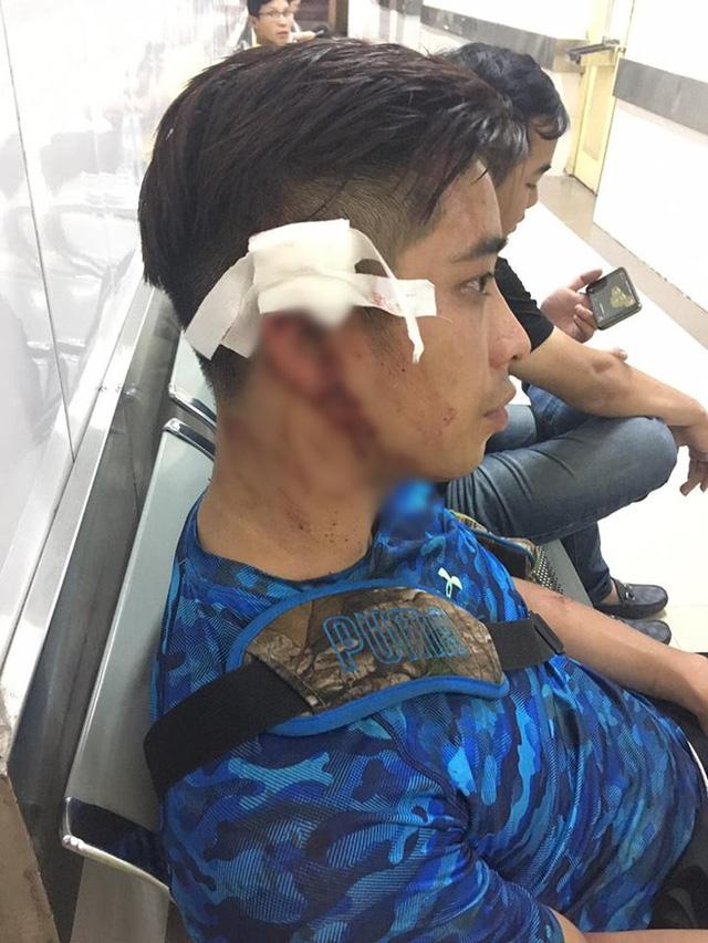 Đi cùng bạn gái đến Trung tâm California Fitness, nam thanh niên bị nhóm người trong phòng tập đánh rách đầu - Ảnh 1.